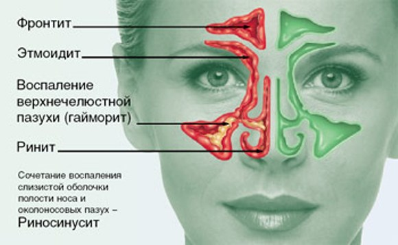 Болит нос: снаружи при нажатии и внутри Причины