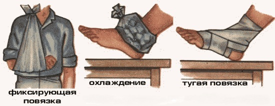 pervaya-pomoshh-pri-vyvixe 4